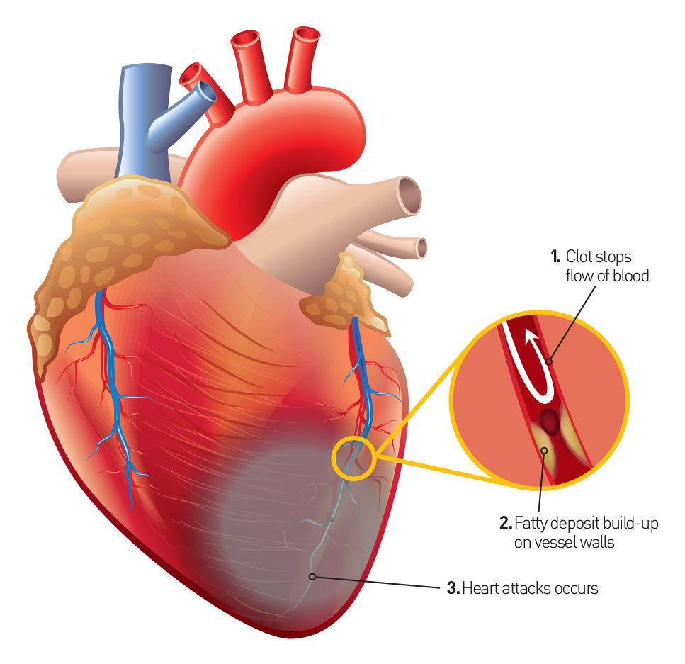 Listen to your heart recognize the signs of a heart attack if the oxygen supply is reduced in the blocked artery for a prolonged period of time the resultant heart attack can cause irreversible damage and scarring ccuart Images