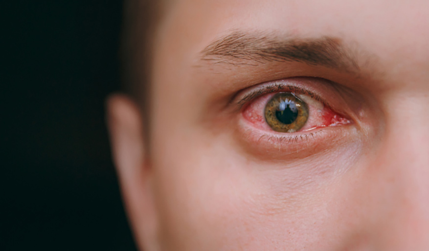 7 Reasons Why Your Eyes May Be Red