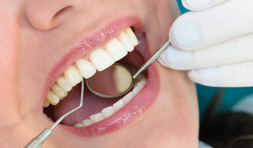 Oral Health and Your Heart
