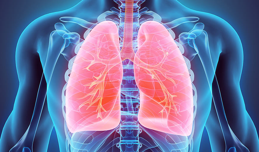 Treating COPD With Lung Volume Reduction