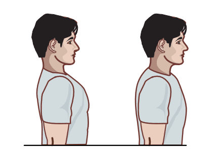 image of diagram for head drop exercise
